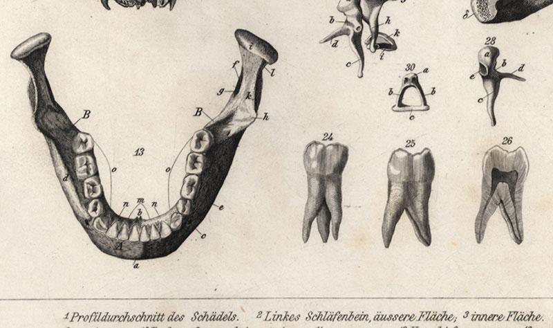 Profildurchschnitt des Schädels Schläfenbein Brockhaus Bilder Atlas ...