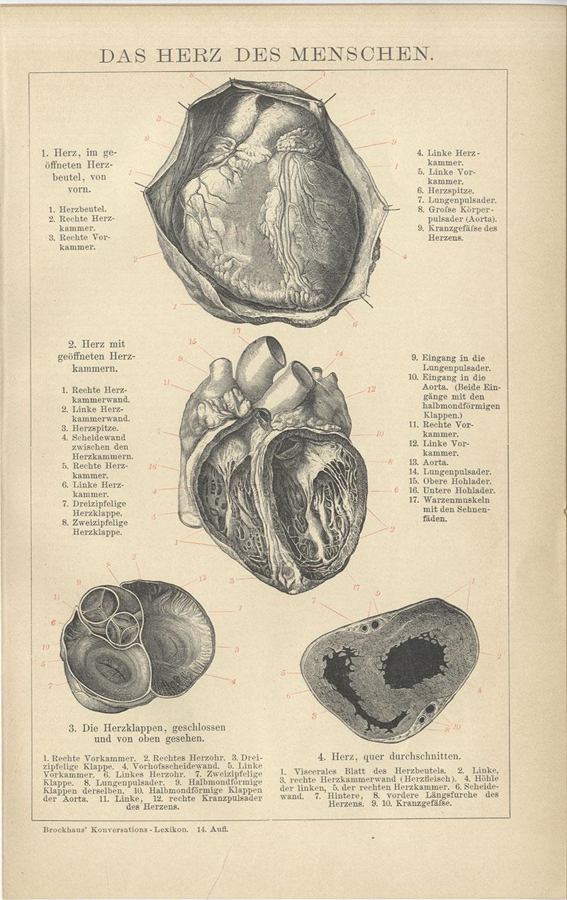 HERZ Herzbeutel Aorta Herzkammer Kardiologie HOLZSTICH von 1898 Herzklappe